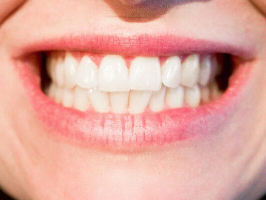 Zelf je tanden bleken